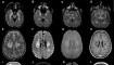 daño cerebral - coronavirus