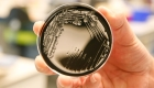 Bacteria legionella es encontrada en edificios de Atlanta