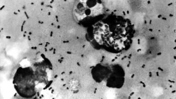 ¿Por qué la peste todavía existe en 2020? ¿Corres el riesgo de contagiarte?