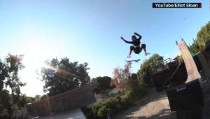 Niña de 12 años volvió al monopatín tras grave accidente