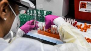 Alertan sobre promesas de una vacuna contra el covid-19