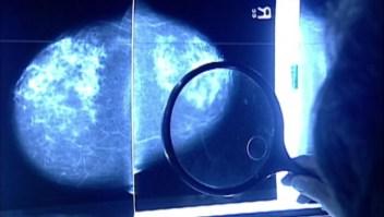 Caen notablemente pruebas de detección de cáncer