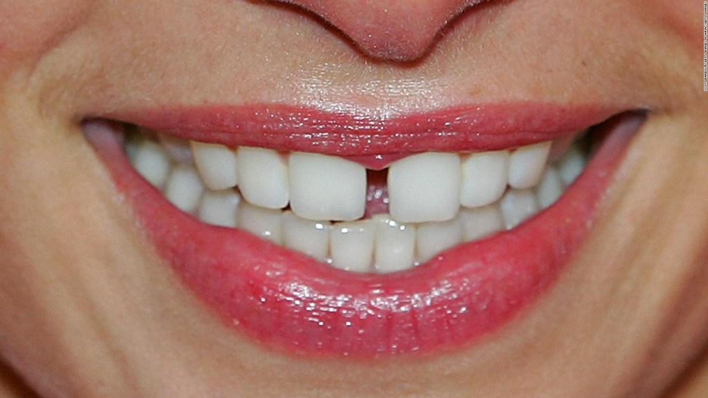 La relación entre los dientes partidos y el covid-19