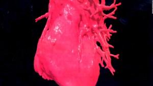 Covid-19 y su impacto en el corazón de mujeres hispanas