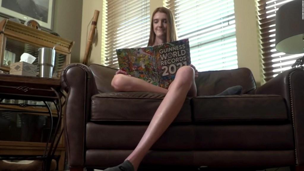 Joven rompe récord de las piernas más largas del mundo