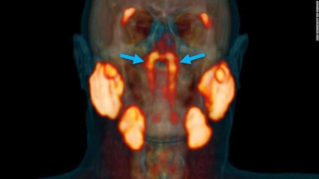 Posible nuevo órgano en la garganta humana descubierto por científicos holandeses