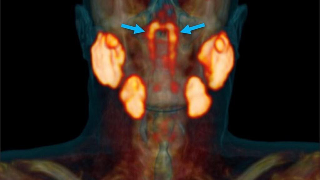 Encuentran posible nuevo órgano en el cuerpo humano