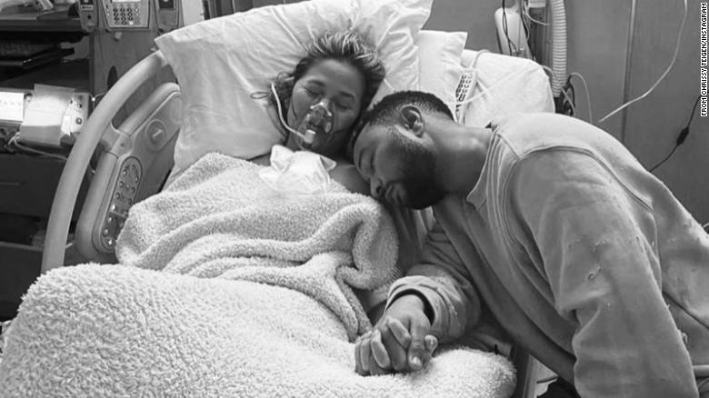 Chrissy Teigen pierde a su bebé por complicaciones durante el embarazo