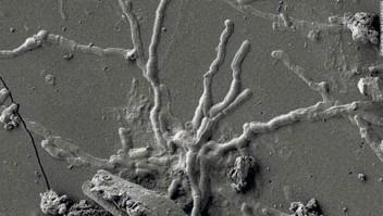 Científicos encuentran células cerebrales intactas en el cráneo de un hombre muerto en la erupción del Vesubio hace casi 2.000 años