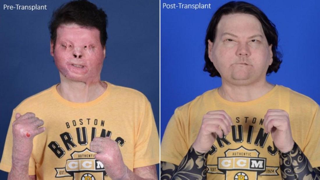trasplante de rostro y manos