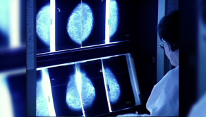 El tumor que más muertes causa en mujeres en Argentina