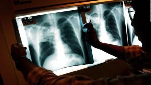 Los países más afectados por la tuberculosis en el mundo