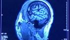 Detectan síntomas de afección cerebral tras covid-19