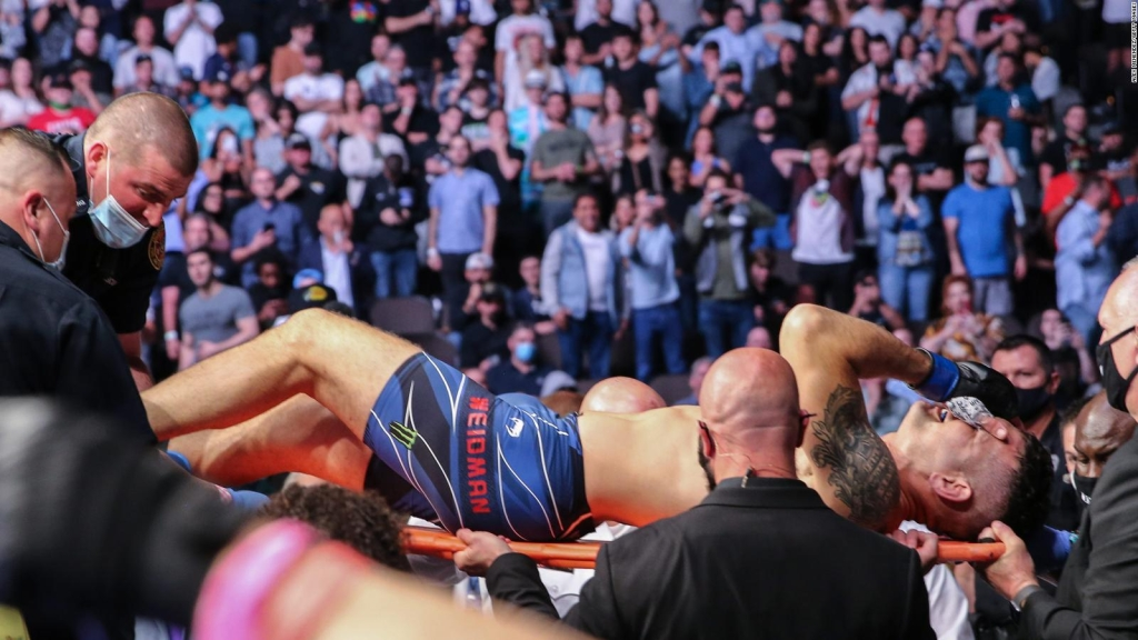UFC: así luce la pierna de Chris Weidman tras operación