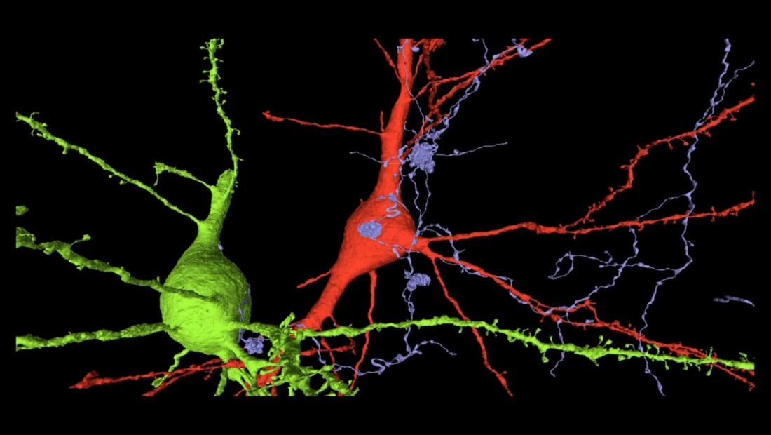 Así se ven nuestras neuronas con un poco de color