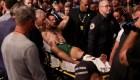 Conor McGregor y su aparatosa fractura de pie