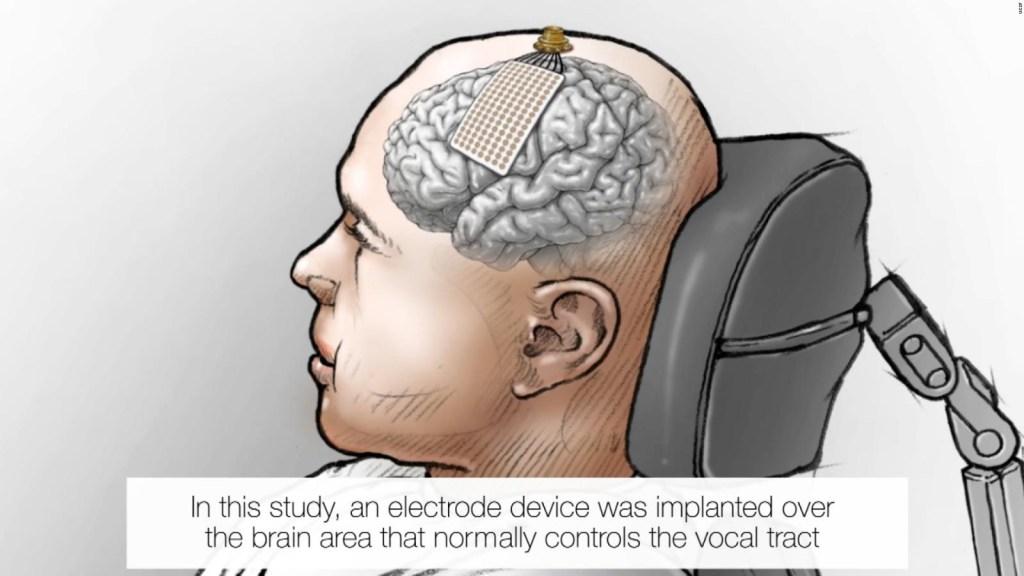 Pudo volver a hablar gracias a implante en su cerebro