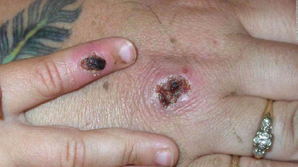 Apepox case in the USA, what is it about?