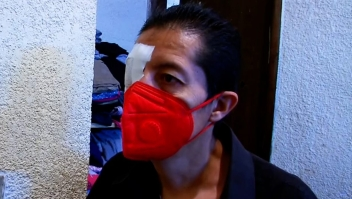 Sobreviviente de hongo negro en México