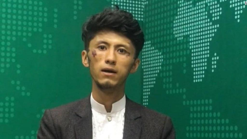 Dos periodistas muestran las heridas que les habrían provocado los talibanes tras una paliza