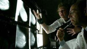El cáncer de mama es el más común en el mundo