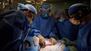 Exitoso trasplante de riñón de cerdo en un ser humano